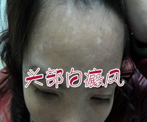 女性白癜风患者怎样保养皮肤