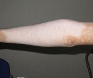 手臂上出现白癜风怎么办
