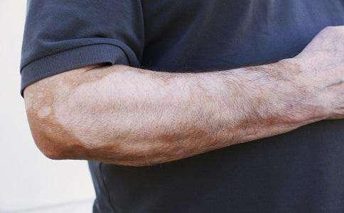 白癜风会给男性患者带来哪些危害