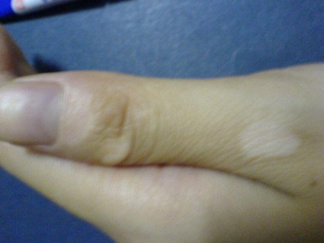 手部白癜风复发原因有哪些