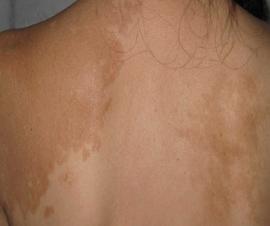治疗背部白癜风方法有哪些