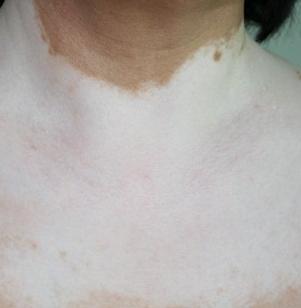 预防胸部白癜风措施有哪些