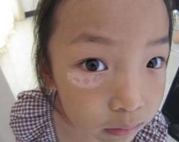 儿童如何减少白癜风的发病率