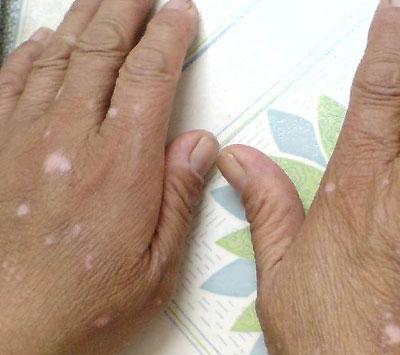 如何诊断手部白癜风呢