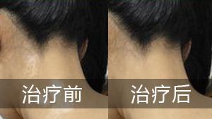 治疗颈部白癜风的方法有哪些