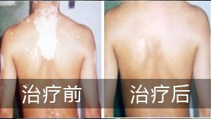 背部白癜风难以治疗原因有哪些