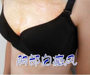 女性胸部白癜风原因有哪些