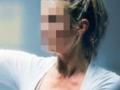 为什么女性白癜风患者越来越多