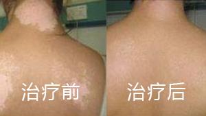 治疗背部白癜风的方法有哪些