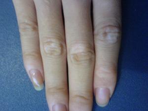 生活中预防手部白癜风措施有哪些